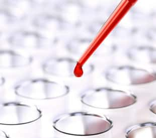 Pipetting blood samples into a deep-well plate. Image: maxuser/Shutterstock.com
