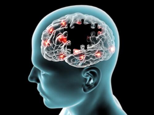 Abstract image of brain with neuodegenerative disease. Image: Naeblys/Shutterstock.com