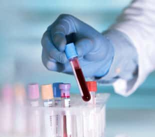 Hands of a lab technician with a tube of blood sample and a rack with other samples/lab technician holding blood tube sample for study. Image: angellodeco/Shutterstock.com.