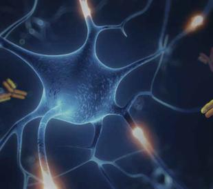 神経変性疾患研究