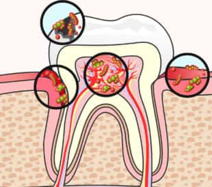 Endodontic Disease