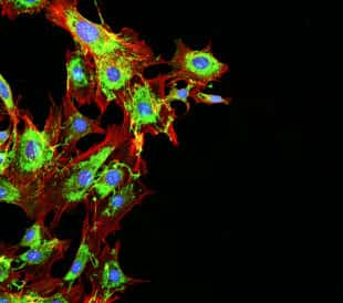 Metastatic cancer cells. Image: DrimaFilm/Shutterstock.com
