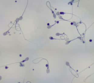 Sperm under a microscope. Image: Carolina K. Smith MD/Shutterstock.com
