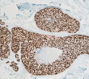Breast cancer, ductal carcinoma in situ (DCIS): Immunohistochemistry (IHC) for estrogen receptor (ER) shows positive nuclear staining (photographed and uploaded by certified US surgical pathologist). Image: David Litman/Shutterstock.com.