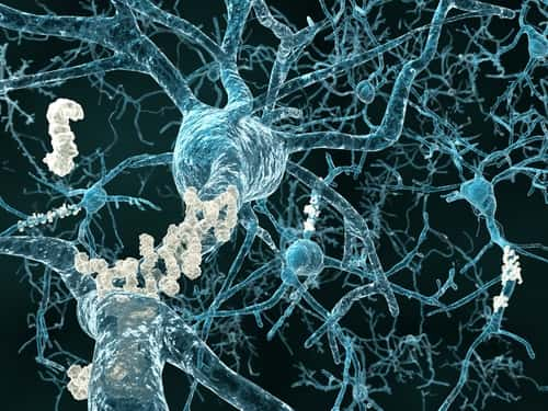 Alzheimer's disease - neurons with amyloid plaques. Image: Juan Gaertner/Shutterstock.com.