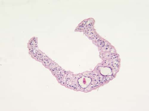 Microphotograph of human parasite Schistosoma mansonii which causes tropical diseases schistosomiasis, transverse section through male and female parasites in copulation, light microscopy, X120. Image: Kateryna Kon/shutterstock.com.