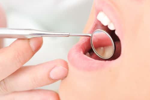 Teeth checkup at dentist's office. Image: Zurijeta/Shutterstock.com.
