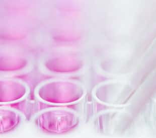 Pipetting pink liquid into multi-well plate. Image: Andrii Slonchak/Shutterstock.com.