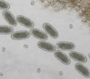 Microscopic of ecoli bacteria, Escherichia coli bacteria, Listeria monocytogenes. Image: Nixx Photography/Shutterstock.com.