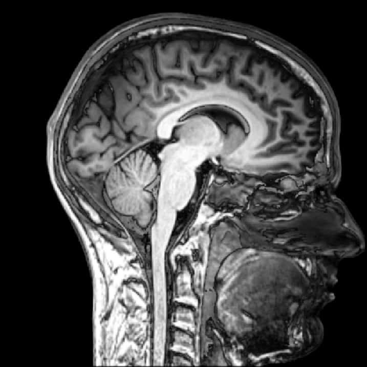 Five Ways In Which Postmortem Brain >> Five Questions Answered About The First Brain Biobank To Study Tbi