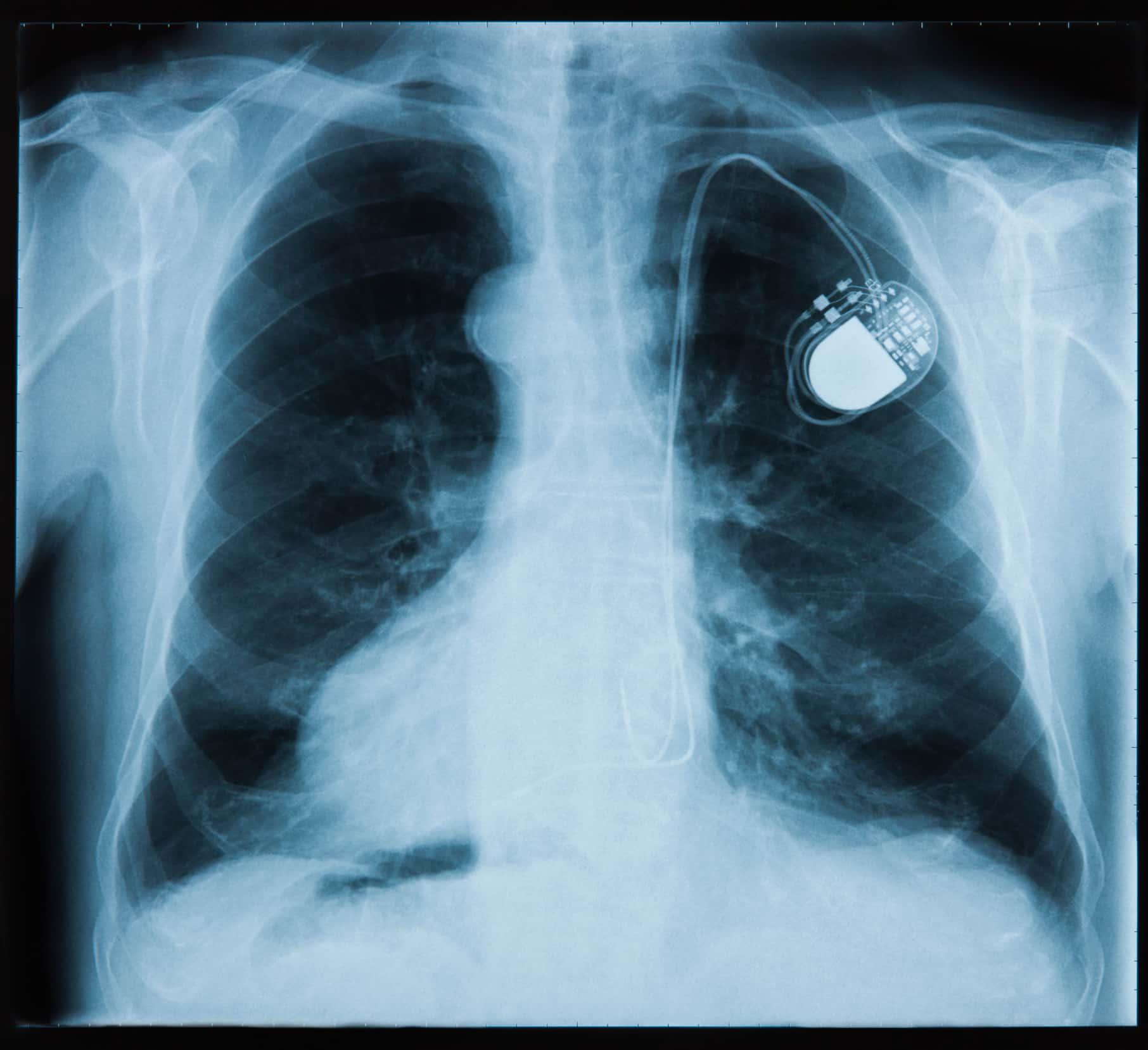 Most pacemakers contain at least two platinum-iridium electrodes.