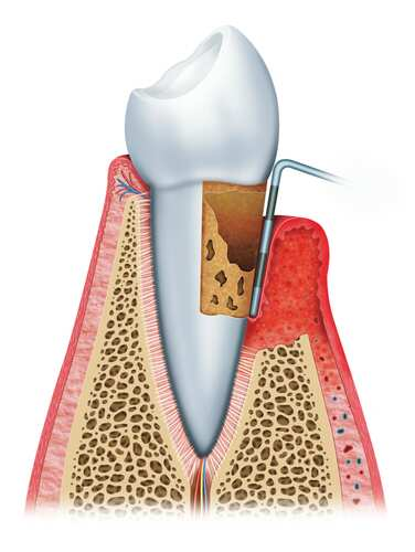 Image of tooth with periodontal disease. Image: Alex Luengo/Shutterstock.com
