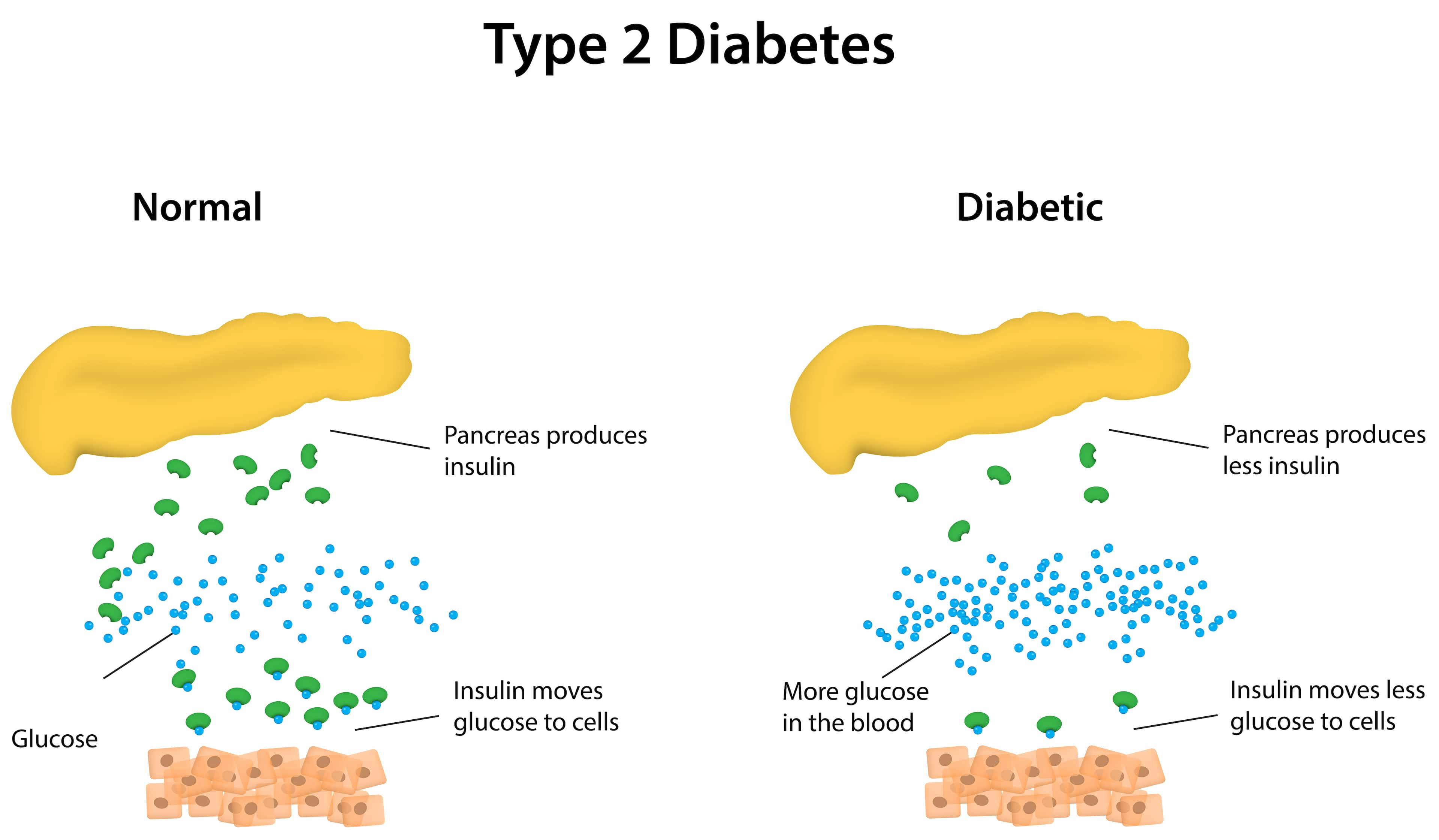 Type 2 Diabetes: Metabolomics Reveals Lipid Metabolism ...