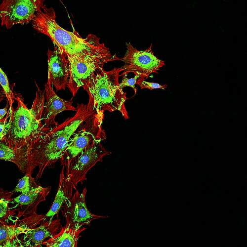 Cancer cells metastasizing. Image: DrimaFilm/Shutterstock.com