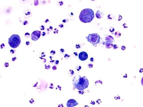 Toxoplasmosis with Toxoplasma gondii. Image: vetpathologist/Shutterstock.com