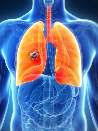 3-D illustration of a lung tumor. Image: Sebastian Kaulitzki/Shutterstock.com