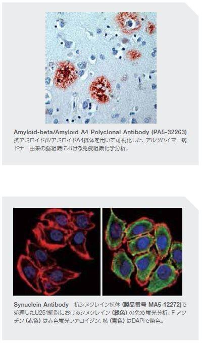 Amyloid-beta/Amyloid A4 Polyclonal Antibody (PA5-32263)
