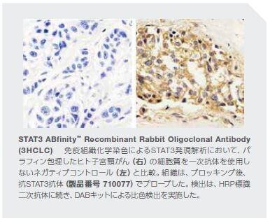 STAT3 ABfinity™ Recombinant Rabbit Oligoclonal Antibody (3HCLC)
