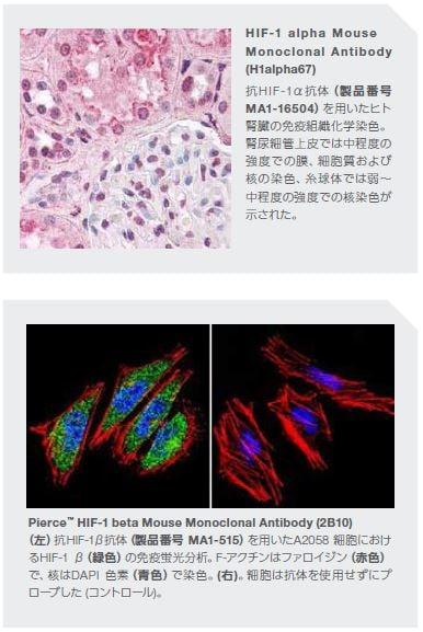 HIF-1 alpha Mouse Monoclonal Antibody (H1alpha67)