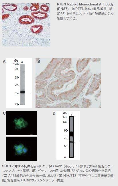 PTEN Rabbit Monoclonal Antibody (PN37)
