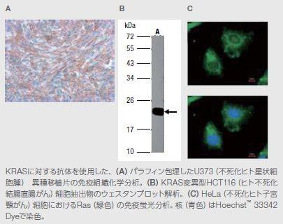 KRAS Rabbit Polyclonal Antibody