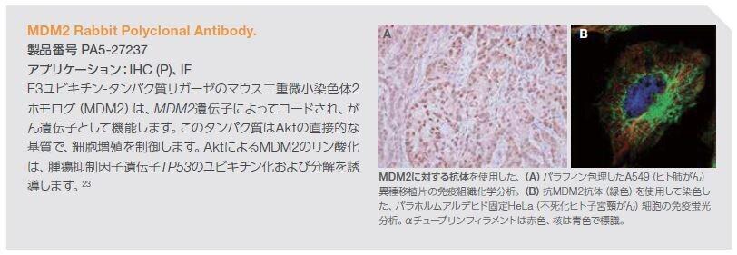 MDM2 Rabbit Polyclonal Antibody
