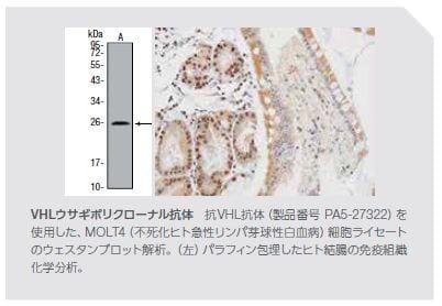 VHLウサギポリクローナル抗体