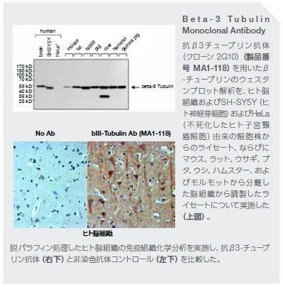B e t a - 3 T u b u l i n Monoclonal Antibody