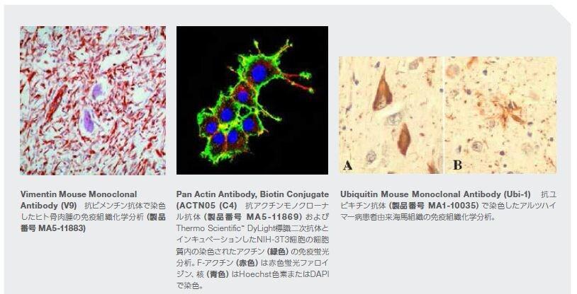 Vimentin Mouse Monoclonal Antibody (V9)