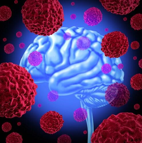 Understanding a Brain Tumor Prognosis