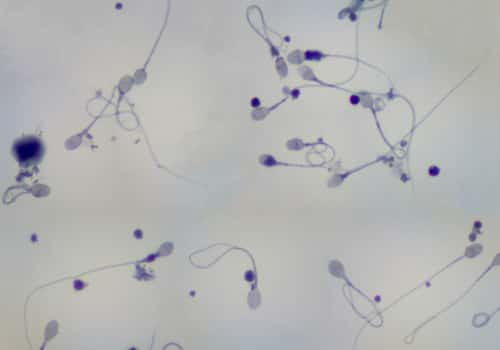 Eosin-nigrosin and viability of sperm interpretation