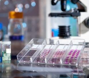 Tray of histopathological samples. Image: anyaivanova/Shutterstock.com