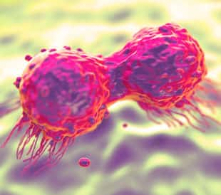 Dividing breast cancer cell. Image: royaltystockphoto.com/Shutterstock.com