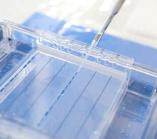 Man loading a sample into a gel for electrophoresis. Image: phloxii/Shutterstock.com.