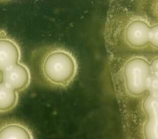 Yeast under the microscope. Image: PIYAPONG THONGDUMHYU/Shutterstock.com.