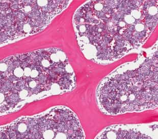 Normal healthy bone marrow depicting erythroid and myeloid cells. Image: vetpathologist/Shutterstock.com.