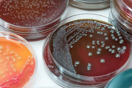 Petri dish of bacterial culture on chocolate agar. Image: Sirirat/Shutterstock.com