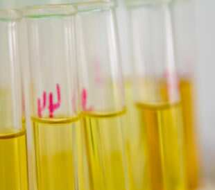 Urine samples. Image by jannoon028/Shutterstock.com