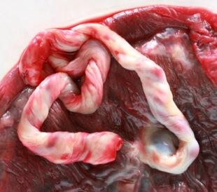Human placenta. Image: Hywit Dimyadi/Shutterstock.com