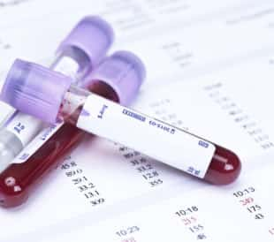 Hematology blood analysis report with lavender color blood sample collection tubes