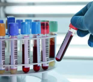 Test tubes of blood being placed in a centrifuge. Image: angellodeco/Shutterstock.com