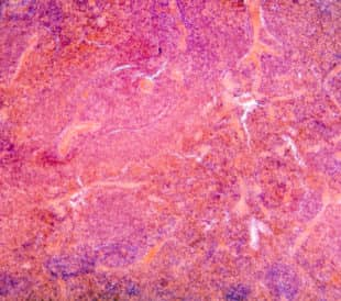 Micrograph of pancreas tissue, typical pancreatic tissue in the jejunum tissue. Image: Pan Xunbin/Shutterstock.com.