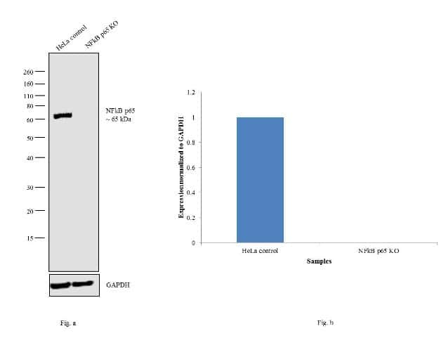 Western blot analysis of NFkB p65