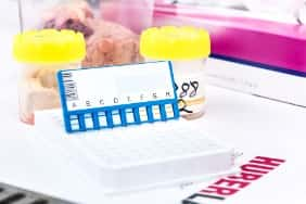 A testing plate sits on a table in a lab in front of a container of BSE samples
