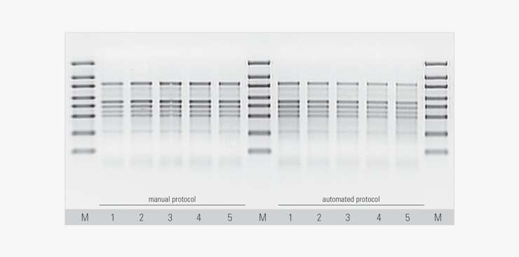 gel electrophoresis anaysis of isolated RNA