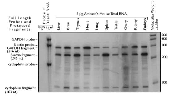 use of internal and external standards or reference rnas for, Muscles
