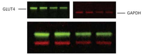 Simultaneous detection of GLUT4 and GAPDH