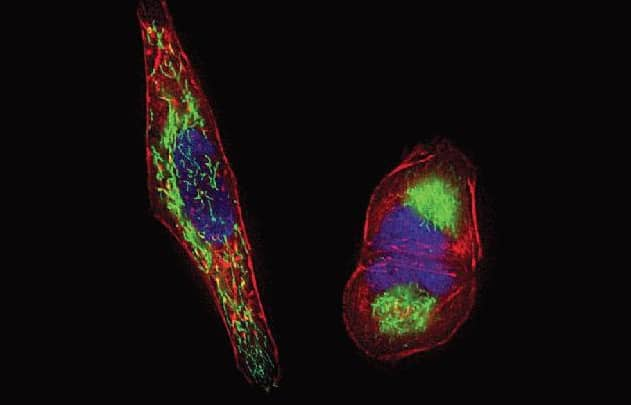 Mitochondria and cytoskeleton staining in live HeLa cells