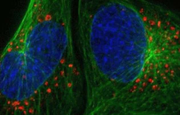 Cytoskeleton staining and autophagy detection in live U2OS cells