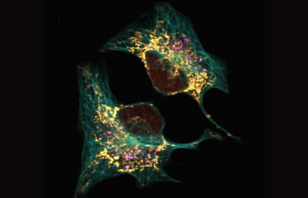 Monitoring autophagy, tubulin, and mitochondria in live U2OS cells